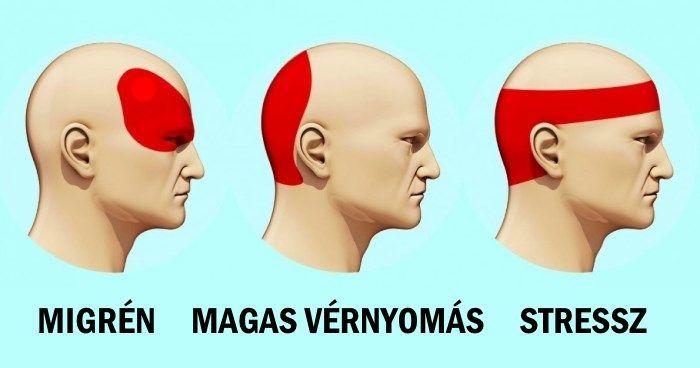 fejfájás magas vérnyomással hogyan lehet megszabadulni)